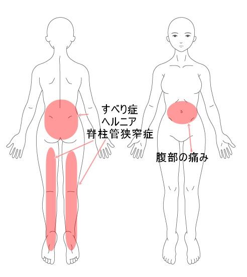 すべり症 腰椎椎間板ヘルニア 脊柱管狭窄症