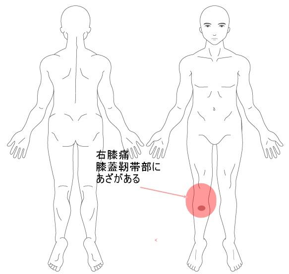 【施術改善例】 30代男性の膝痛の原因は仕事でのひざまずくことだった