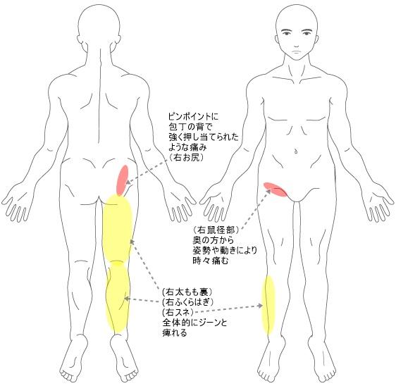 【症状改善例】近くの整骨院で坐骨神経痛だと 言われてマッサージの治療を してもらっているが、 いっこうに改善の兆しが みられない