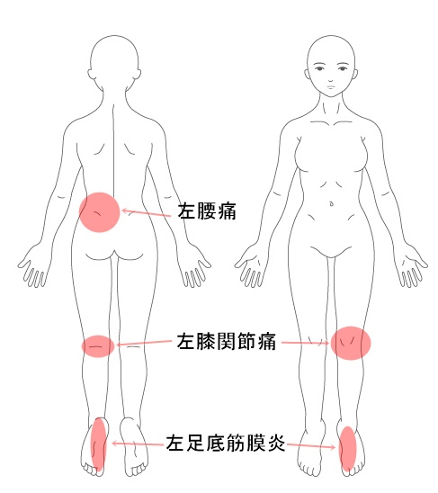 【施術改善例】 足底筋膜炎 膝痛 腰痛