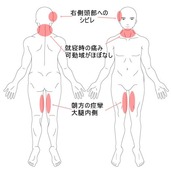 【施術改善例】 1年も寝る時に痛かった首の原因は広背筋と中小殿筋