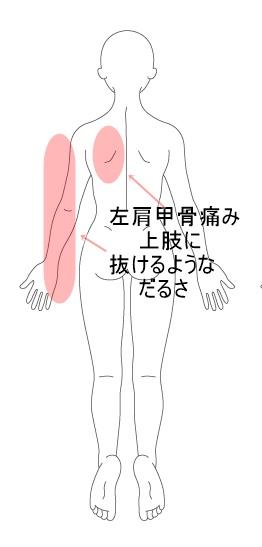 の 左肩 痛み 甲骨