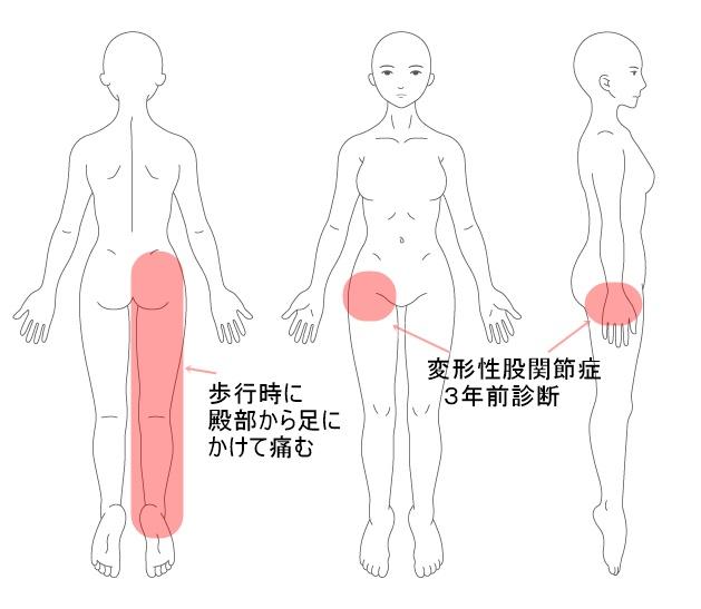 マッサージやメドマ-で良くならなかった変形性股関節症が骨盤調整で改善